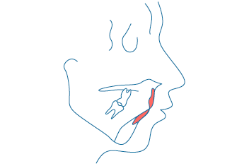 咬合まで考慮したトータル治療